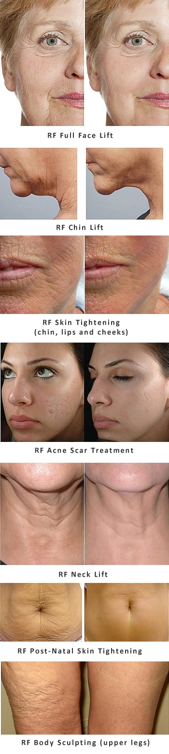 RF Skin Tightening and Body Sculpting