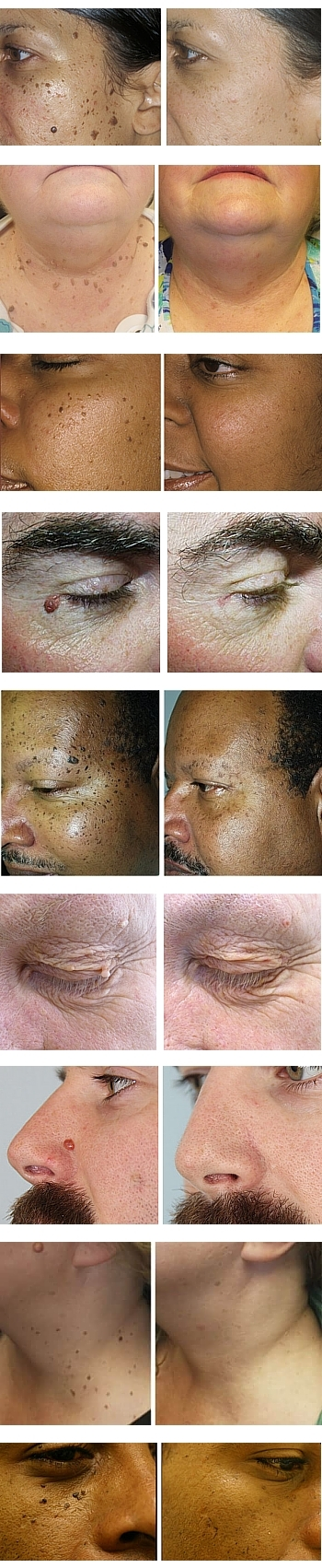 Skin Tage Removal